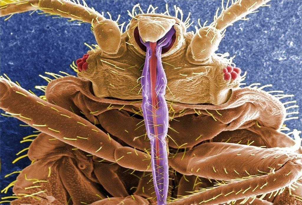Изображение постельного клопа, полученное на растровом электронном микроскопе