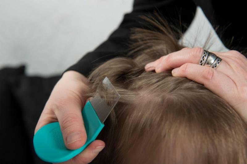 Вши фото в волосах у детей