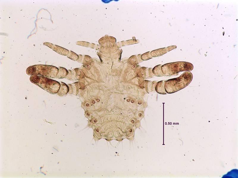 Лобковая вошь (площица) фото (лат. Pthirus pubis)